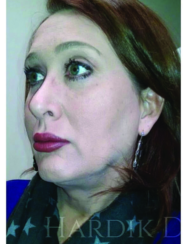 Face_Neck-Lift1Before