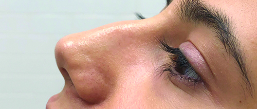 Non-Surgical-Rhinoplasty-3-Before