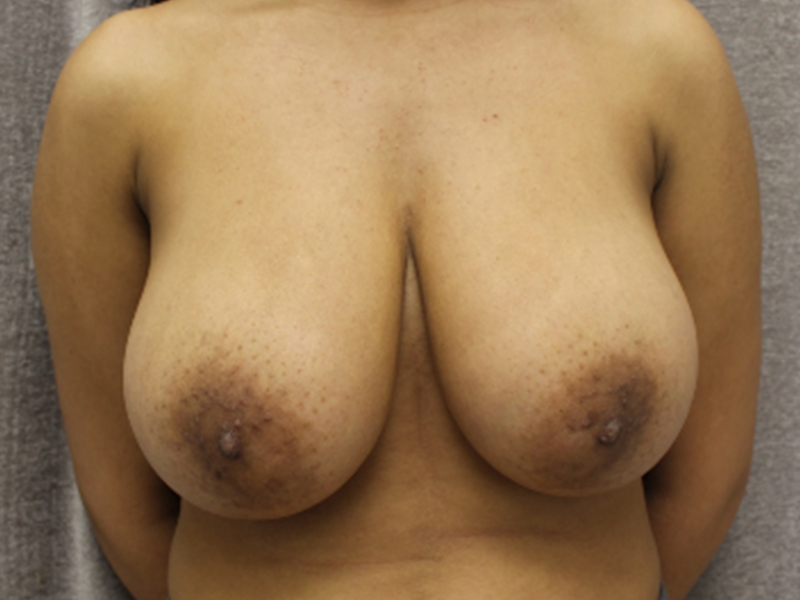 breast-lift-1-before