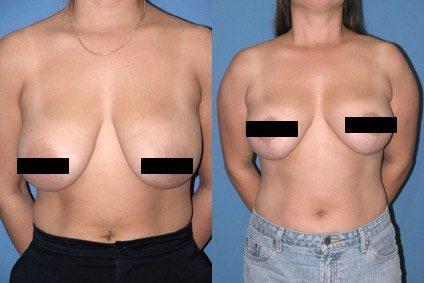 breastreduct-1