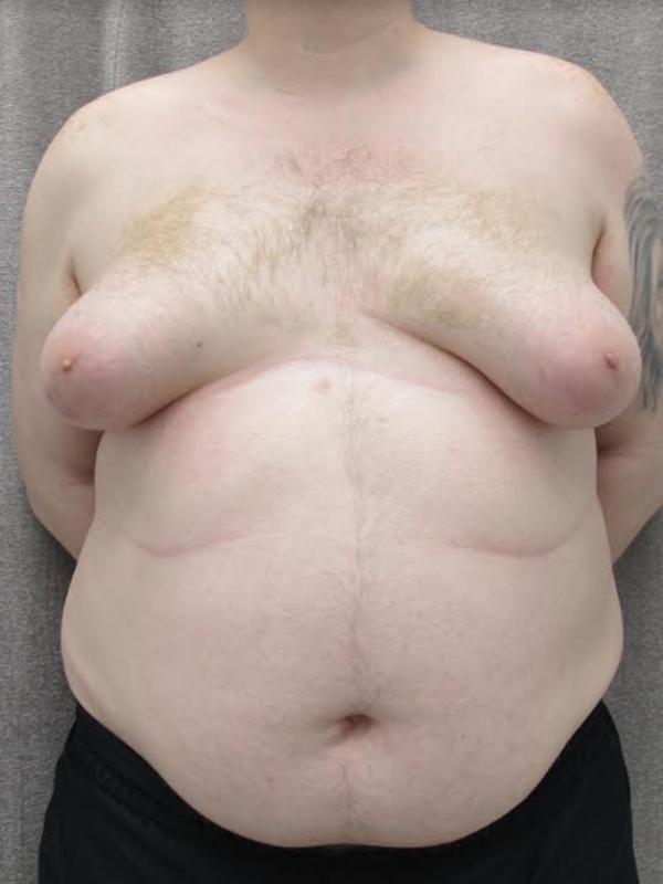 gynecomastia-1-before