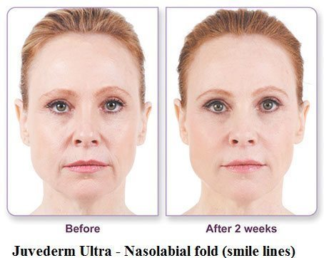 juvederm-before-and-after-2