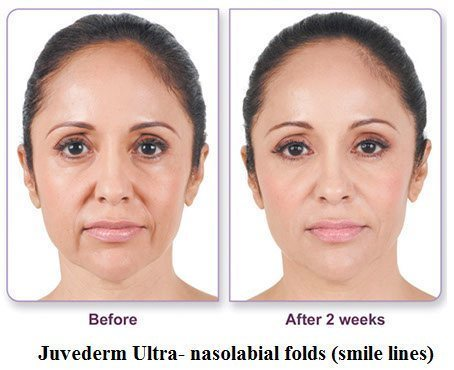 juvederm-before-and-after