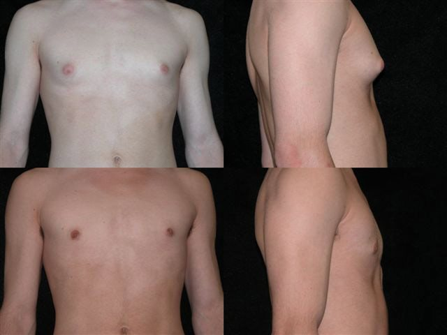 male_reduction