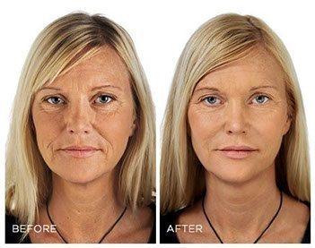 restylanel-wrinkles